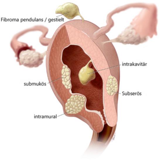 Wie krank myom gebärmutter entfernung lange Gynäkologische Operationen
