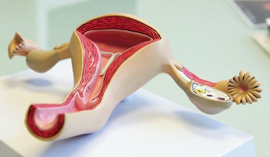 Gutartige Erkrankungen - Hysterektomie/Gebärmutterentfernung ...
